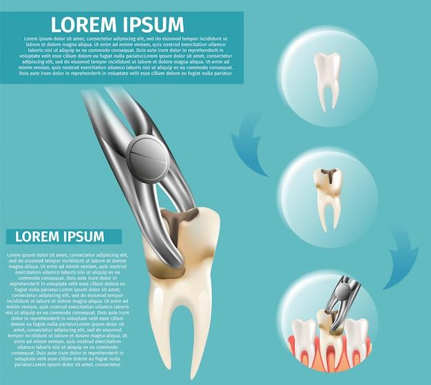 Ilustración realista infografía cirugía dental