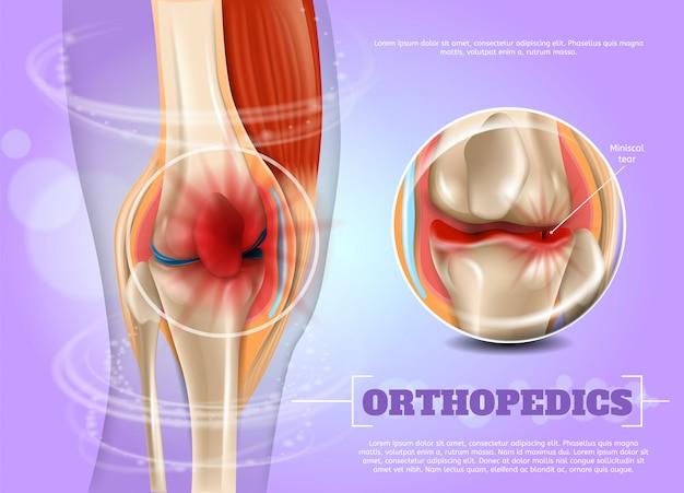 Ilustración realista de la medicina ortopédica en 3d