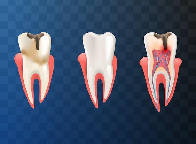 Ilustración realista set dientes diferente problema