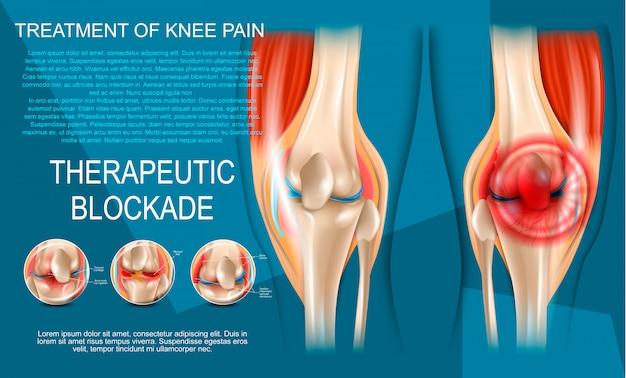 Ilustración realista del tratamiento del dolor de rodilla