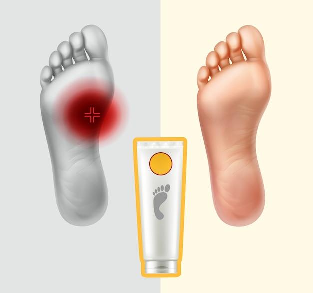 Ilustración de suelas con punta dolorosa y sana. concepto aplicando crema para el cuidado de la piel y neutralización del dolor.