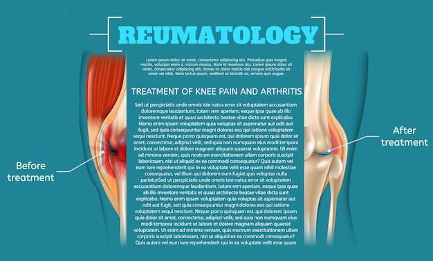 Ilustración tratamiento del dolor de rodilla y artritis