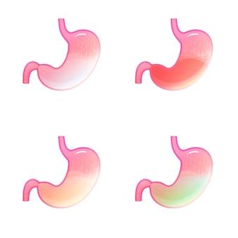 Ilustración de vector aislado de la anatomía del estómago. jugo gástrico rojo con sangre, verde con bilis