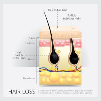Ilustración de vector de estructura de pérdida de cabello