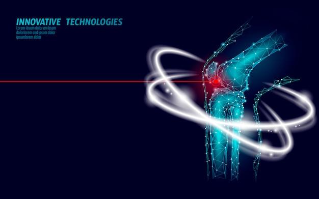 Ilustración de vector de modelo 3d de articulación de rodilla humana. futuro de diseño low poly