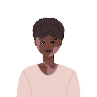 Ilustración de vector de mujer negra joven y hermosa con trastorno de la piel por vitiligo