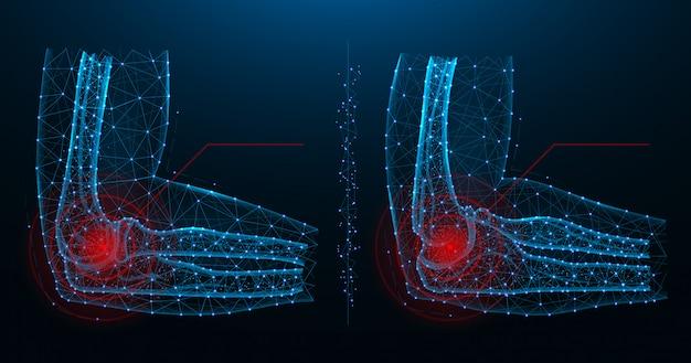 Ilustración de vector poligonal azul dolor en las articulaciones del codo