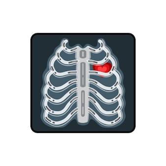 Ilustración de vector de rayos x. radiografía de un pecho humano con un corazón rojo.