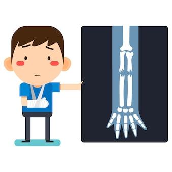 Ilustración vectorial, pequeño personaje de dibujos animados lindo paciente hombre roto brazo derecho en vendaje de yeso o brazo enyesado