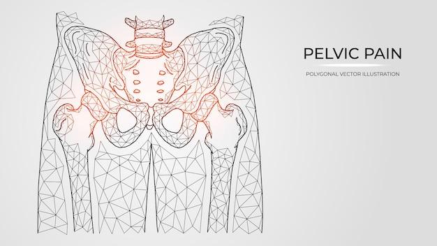 Ilustración vectorial poligonal de dolor, inflamación o lesión en la pelvis y la articulación de la cadera.