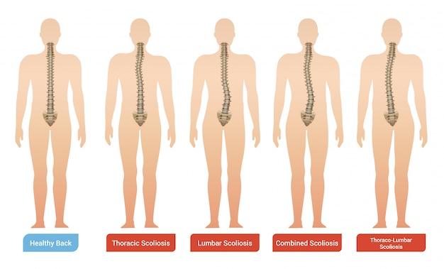 Imágenes de infografía médica de escoliosis de curvatura espinal con siluetas de cuerpo humano con columna vertebral y texto