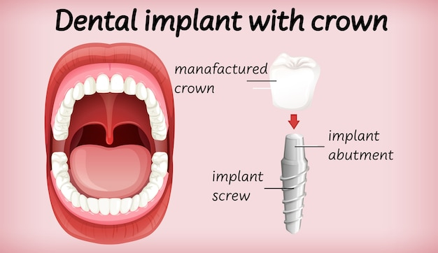 Implante dental con corona