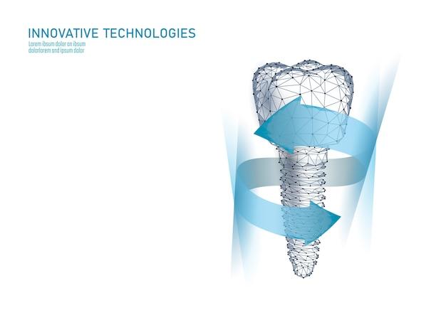 Implante dental de diente molar modelo geométrico 3d de baja poli.