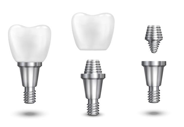 Implante de diente. implante dental y diente de salud, implante sano, ilustración vectorial