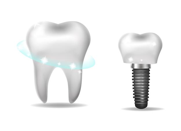 Implantes dentales, prótesis de estilo realista. odontología, concepto de dientes sanos. ilustración