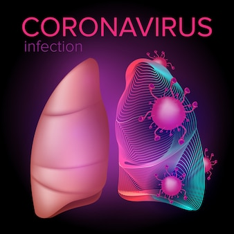 La infección por coronavirus del medio oriente ataca los pulmones humanos. ilustración del síndrome respiratorio de china. concepto de salud y diseño médico