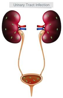 Infección del tracto urinario en el fondo blanco