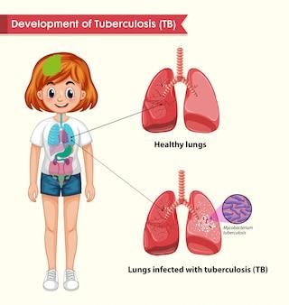 Infografía científica médica de tuberculosis