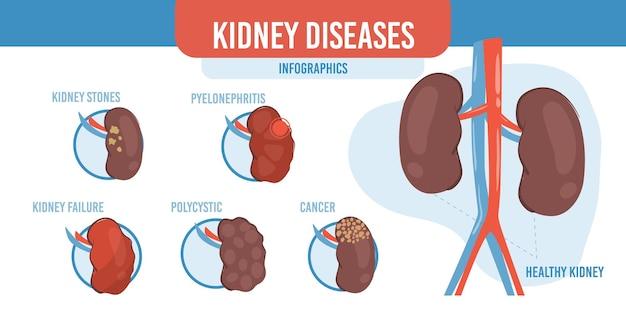 Infografía de dibujos animados planos, riñones sanos