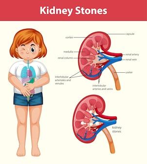 Infografía de estilo de dibujos animados de cálculos renales humanos