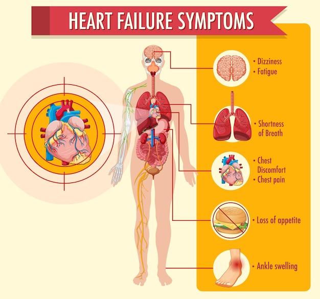 Infografía de información de síntomas de insuficiencia cardíaca
