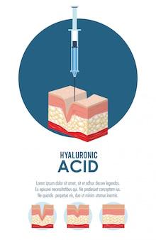 Infografía inyección de relleno de ácido hialurónico