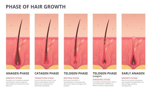 Infografía médica del ciclo de crecimiento del cabello.