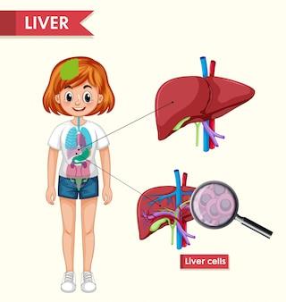 Infografía médica científica de la enfermedad renal.