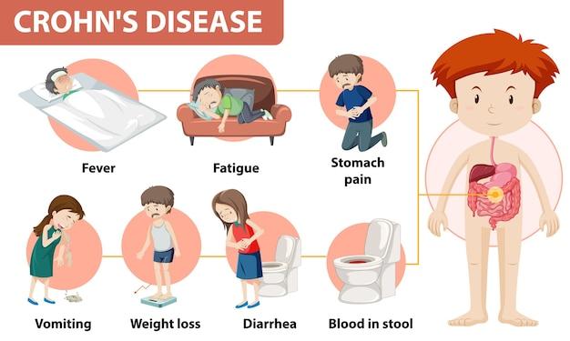 Infografía médica de la enfermedad de crohn