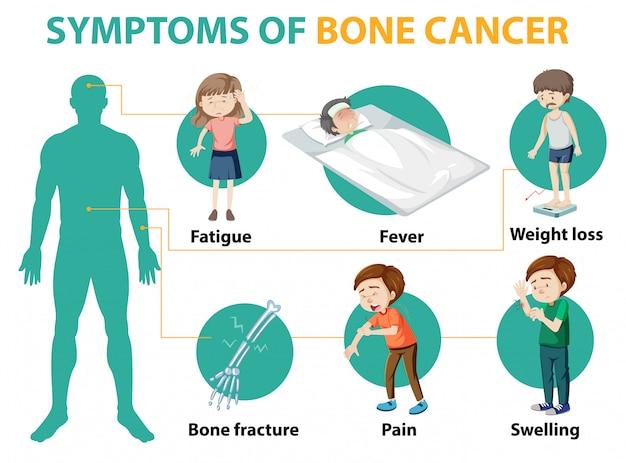 Infografía médica de los síntomas del cáncer de hueso.