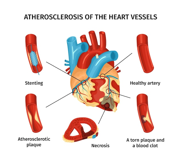 Infografía plana de aterosclerosis de vasos cardíacos con partes etiquetadas