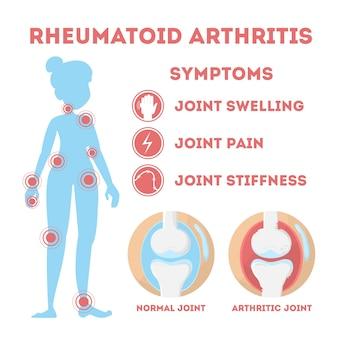 Infografía de reumatismo. enfermedad ósea a pie, mano