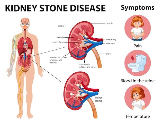 Infografía de síntomas y enfermedad de cálculos renales
