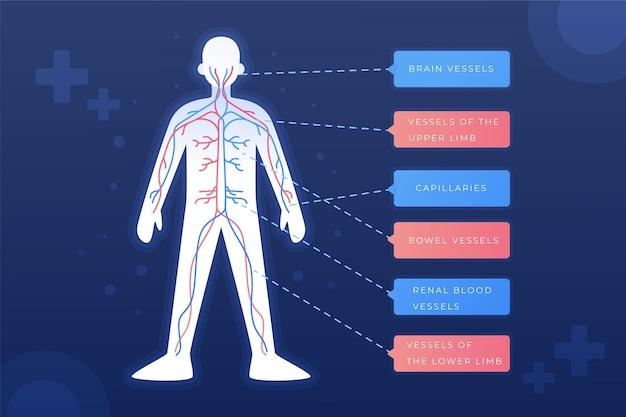Infografía del sistema circulatorio degradado