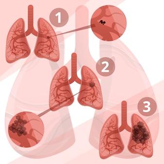 Infografía del sistema pulmonar, estilo cartoon.