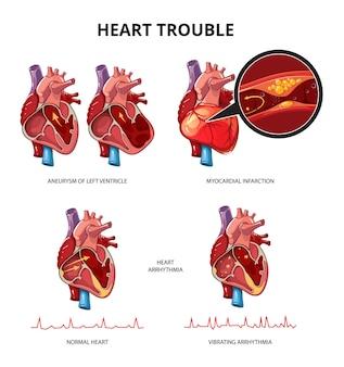 Infografía de vector de enfermedad cardíaca. ilustración de información de infografía de corazón humano médico