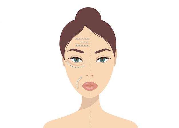 Inyección facial de ácido hialurónico. belleza, cosmetología, concepto antienvejecimiento. ilustración de vector de fotos de belleza