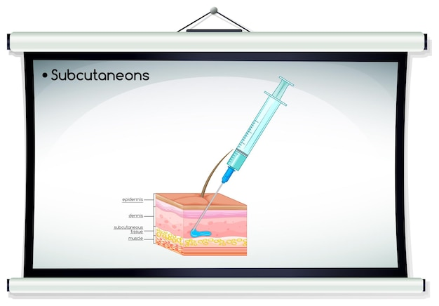 Inyección de subcutaneons en piel humana