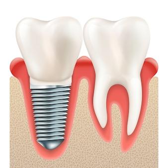 Juego de dientes. dientes realistas humanos e implantes dentales.