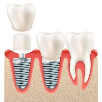 Juego de implantes dentales.