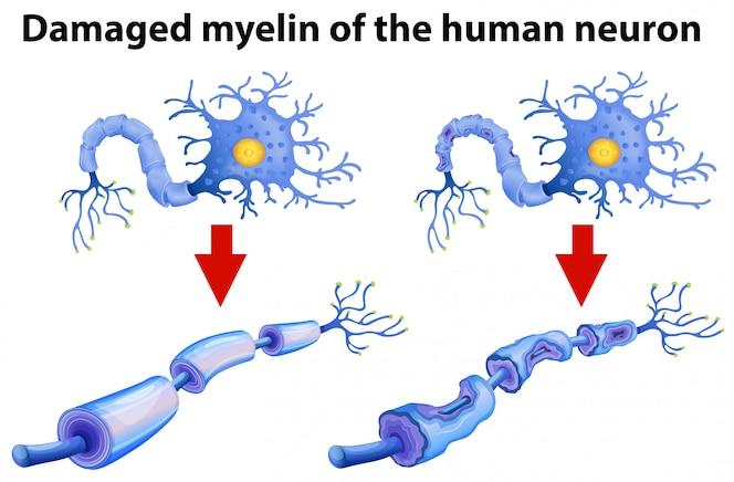 La mielina dañada de la neurona humana