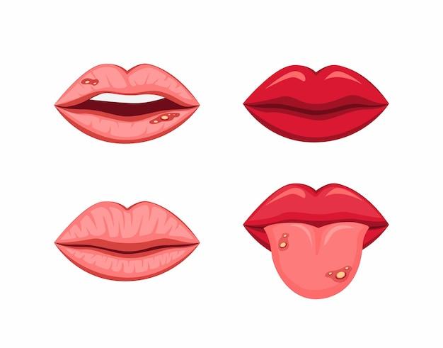 Labios de la boca con lengua sana y estomatitis ulcerosa en la ilustración de dibujos animados