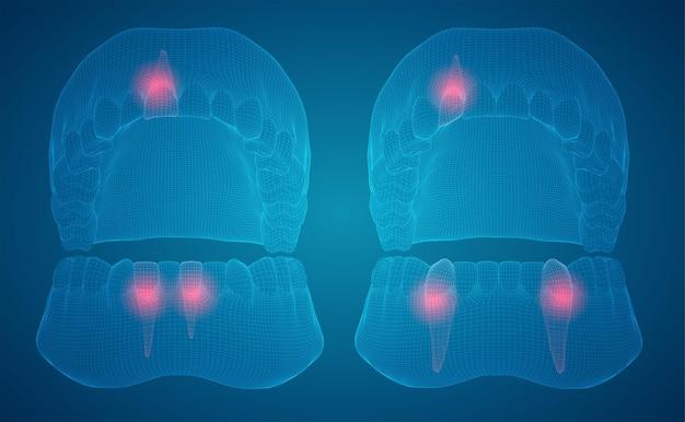 Mandíbula humana diseño 3d medicina y salud dolor de dientes