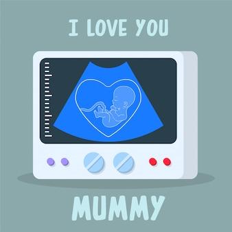 Máquina de diagnóstico por ultrasonidos con embrión en pantalla.