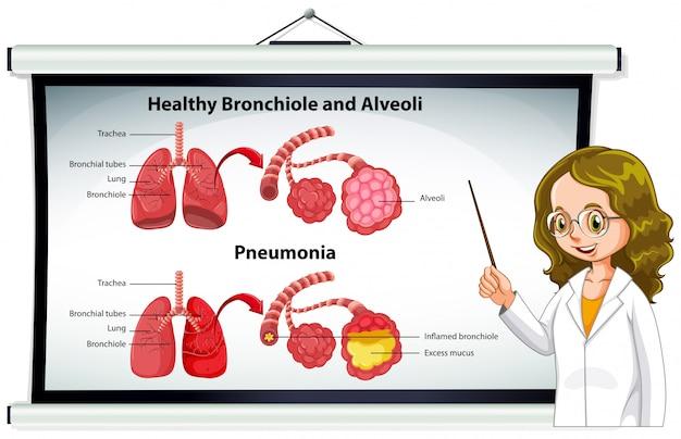 Médico explicando sanos bronquiolos y alvéolos.