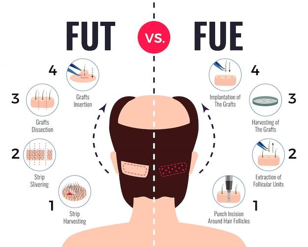 Métodos de trasplante de cabello fut vs fue póster con elementos infográficos en blanco