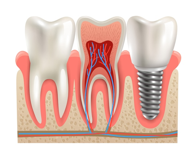 Modelo de primer plano de anatomía de implantes dentales