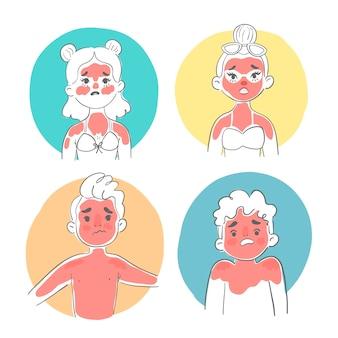 Mujer de diseño plano con una ilustración de quemaduras de sol