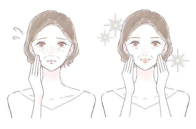 Mujer de mediana edad que se preocupa por las pecas. antes y después sobre un fondo blanco.