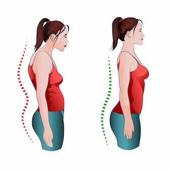 Mujer con postura incorrecta y derecha hacia atrás.